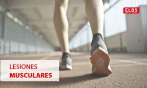tipos de lesiones musculares que debes conocer